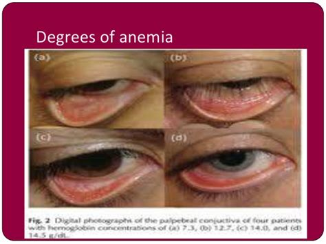 anemia skin color anemia in pregnancy by dr shabnam naz
