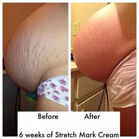 Detox For Stretch Marks by 6 Weeks Using It Works Stretch Https