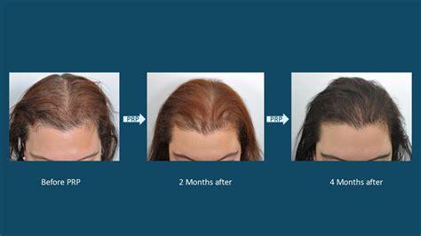 transplant hair second round draft new hair transplant procedures hair transplant surgery for
