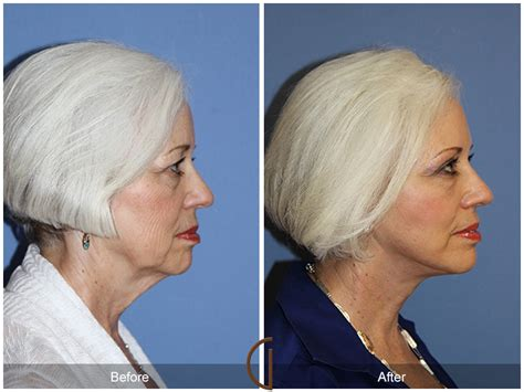 lower face and neck lift lower facelift orange county newport beach lower face