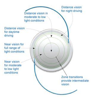 intraocular lens causes symptoms treatment intraocular lens