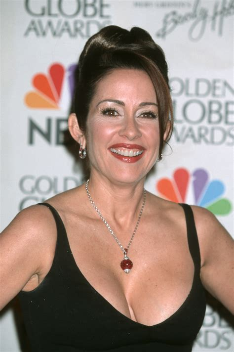 patricia heaton before and after photos surgery vip