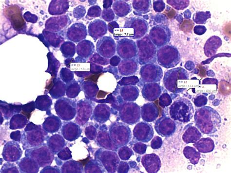 transitional cell carcinoma in dogs cell lymphoma b cd21 cytology taken and interpreted