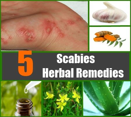 top 5 scabies herbal remedies herbal remedies to cure