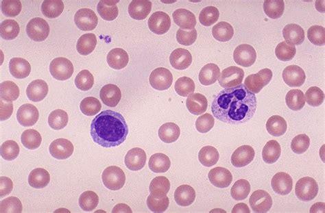 blood film morphology quiz hematopathology