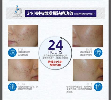 Oxy Glow Original Spot Acne anti acne light print scar removal acne spots skin care treatment