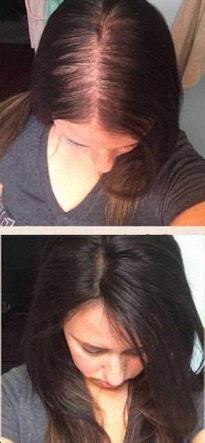bald patches good for a pixie 25 best ideas about thinning hair women on pinterest