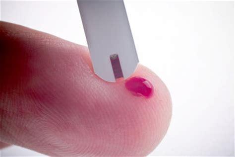 Honig Bei Diabetes So Halten Sie Ihren Blutzuckerpegel