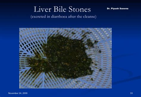 Bile Salts Liver Detox by Cure Yourself Through Cleansing