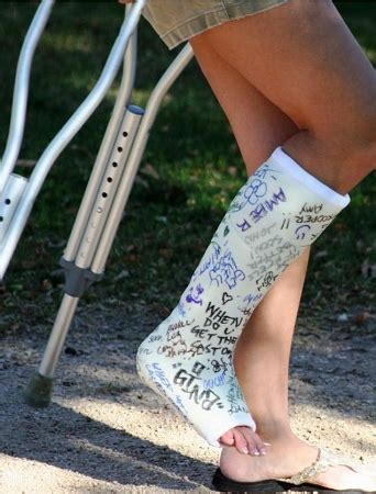 buy affordable leg cast kit at orthotape