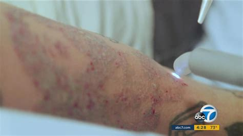 tattoo removal inland empire look student pair letourneau