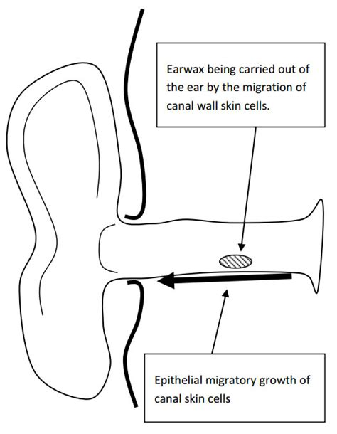 wax types diagram ear diagram wax gland images how to guide and refrence