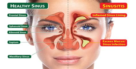 Sinus Problems After Sugar Detox by Sinus Infection Treatment Post Nasal Drip Treatment