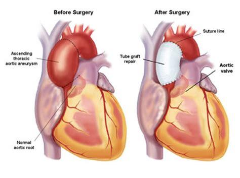 Plastik Wrap Di Lung 대동맥류 상행 대동맥류 ascending aortic aneurysm 4 치료
