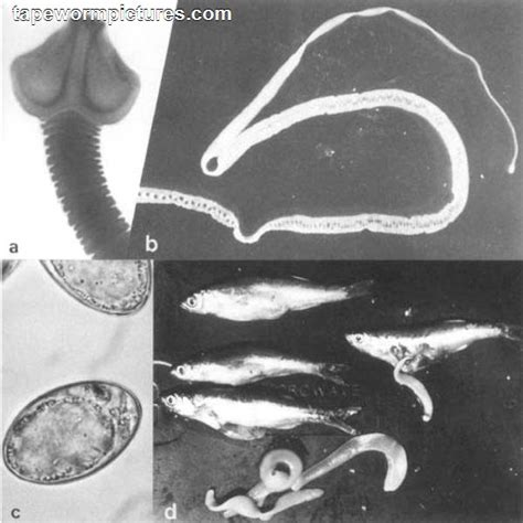 tapeworm treatment treatment for infection tapewormpictures