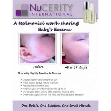 411 International Lookup Nucerity International Bratlien In Warman Saskatchewan 306 381 3433 411 Ca