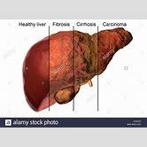 liver-cirrhosis