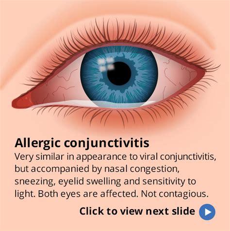 symptoms of pink eye image gallery eye symptoms