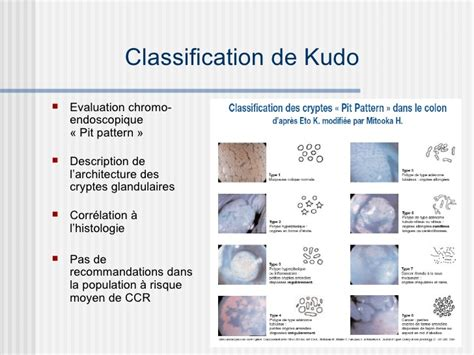 pit pattern classification kudo polypectomie