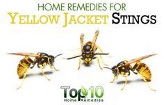 wasp remedies and home remedies on