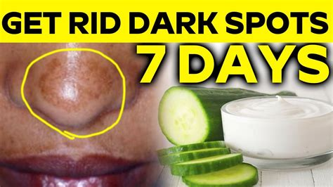 how to remove or prevent black dots ingrown hairs remove dark spot in nose with in 7 days 100 natural