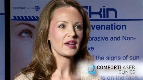 comfort laser clinics jessica s laser removal story comfort laser clinics