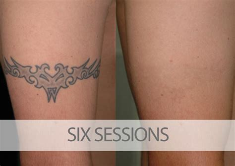 tattoo removal how many sessions tattoo removal before and after pictures eraditatt