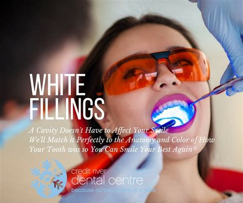white tooth fillings mississauga  composite dental
