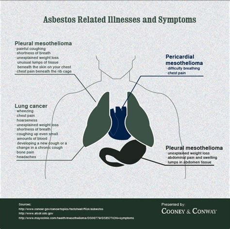 Mesothelioma Compensation by Asbestose Symptomen