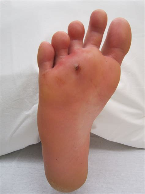 puncture wound file footpuncture jpg wikimedia commons