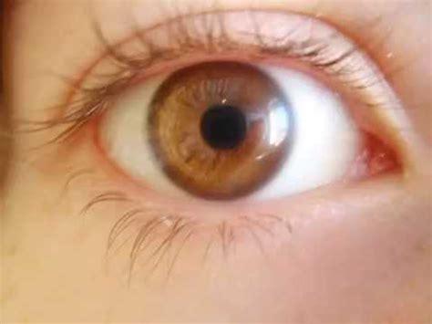 Imagenes Ojos Color Miel   personas ojos distinto color videos videos
