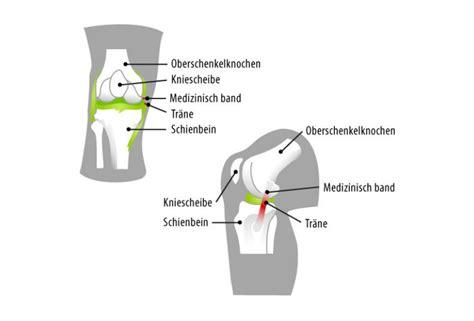 knieschmerzen innen knieschmerzen ursachen diagnose hilfe joggen
