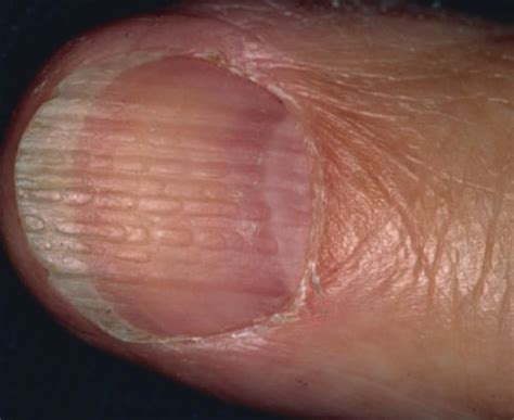 fingernail beading doctor vignjevic onychorrhexis age related nail changes