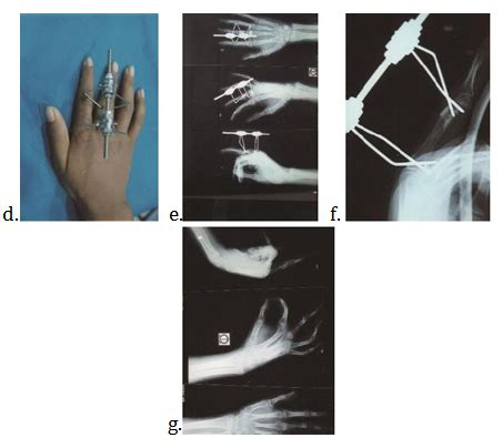 distraction osteogenesis technique   treatment  acquired  congenital shortening