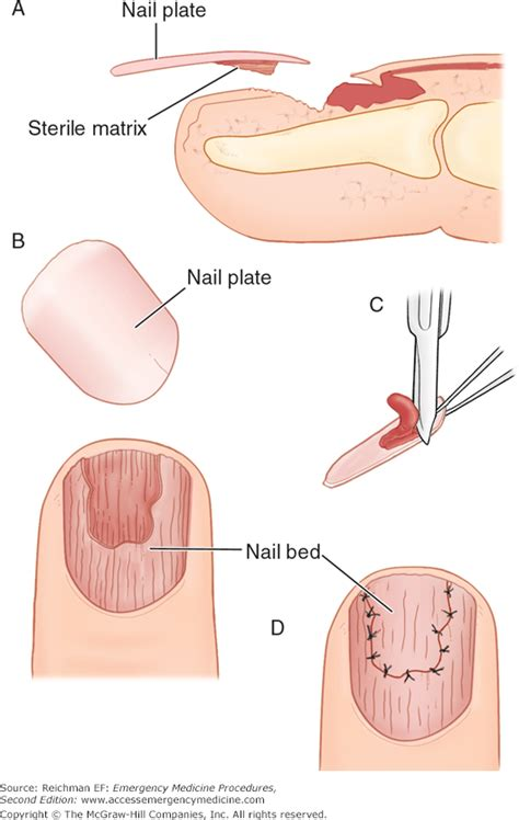 what is a nail bed what is a nail bed 28 images nail beds 28 images pics
