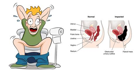 constipation relief how to relieve constipation quickly and naturally