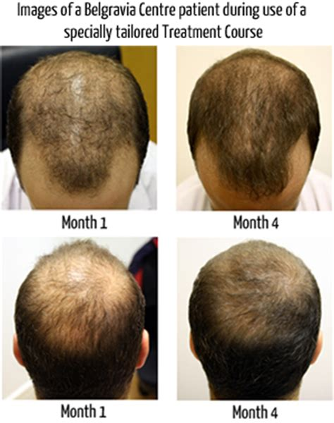 male pattern baldness hair loss rate could protein shakes increase hair loss