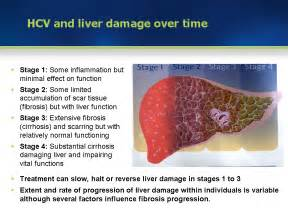 Module 3 hcv prevalence and course of hcv infection section 3