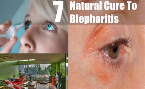 7 effective cures for blepharitis how to cure