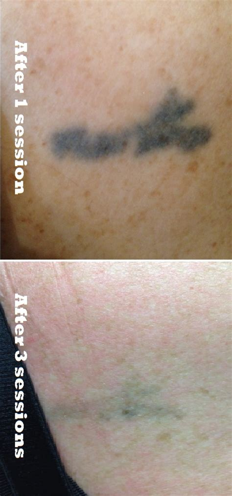 vancouver tattoo removal pics vancouver removal