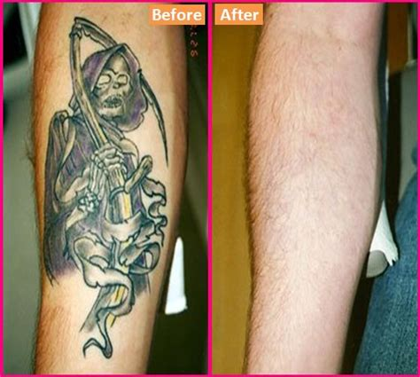how to get tattoo removed how to get rid of a at home