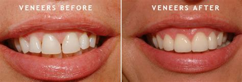 How To Fix Crooked Teeth At Home by How To Fix Crooked Teeth Treatment For Crooked Teeth In Mississauga Dental Implants