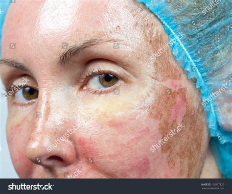 cosmetology new skin after chemical peeling stock photo 119517820
