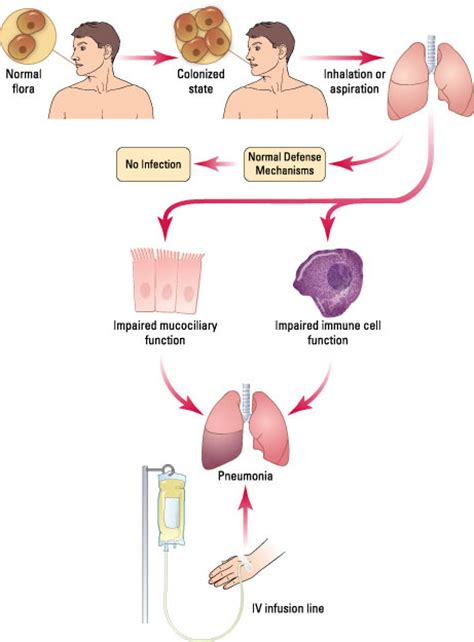 pathophysiology of pneumonia diagram nursing 704c pathophysiology of altered health states ii