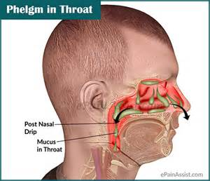 phlegm in throat or mucus in throat causes ways to get