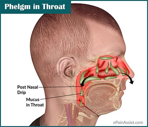 mucus in phlegm in throat or mucus in throat causes ways to get rid of it