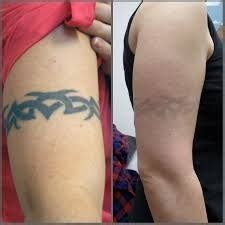tattoo cost in pune laser tattoo removal on body