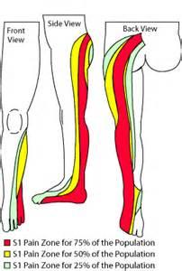 chiropratique hernie cervicale dorsale lombaire