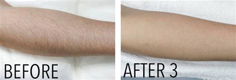 diode laser hair removal before and after diode laser hair removal maine laser clinic
