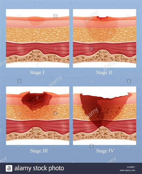 bed sores stages illustration showing the stages of of a bed sore or